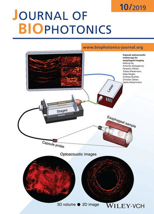 Cover of the Journal of Biophotonics